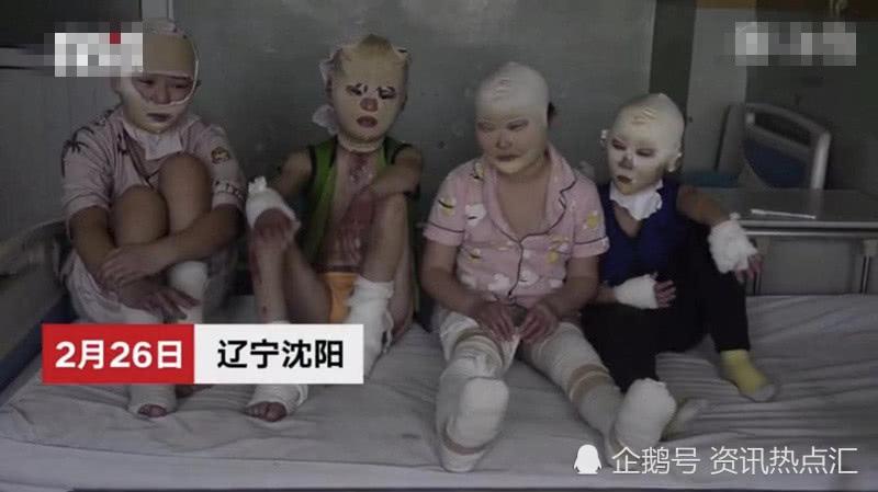 锅炉爆炸,四个小学生被炸成面具娃娃,暂告别学校,网友看后心疼
