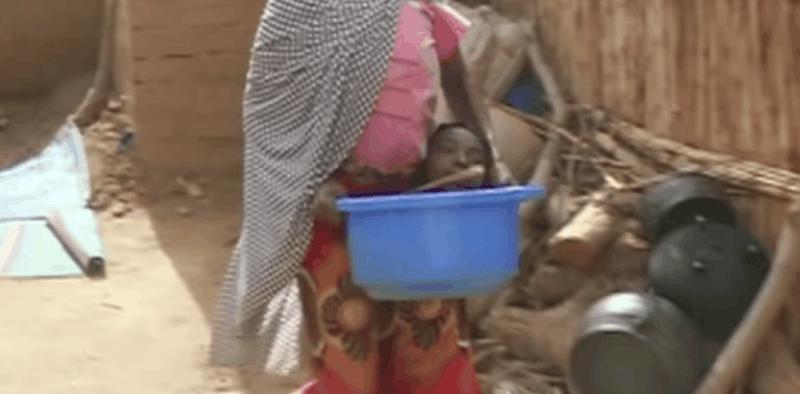 19岁女孩从出生开始就四肢奇短,只能被迫在塑胶盆里生活!