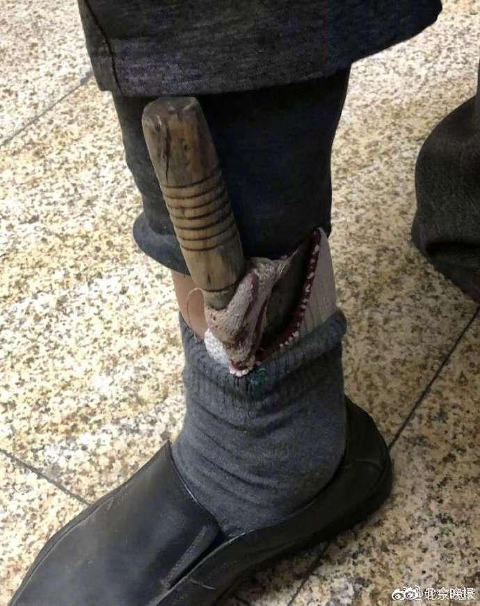 为避高铁安检,男子把两把大刀插在袜子里
