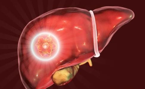 """这3件事是肝囊肿的""""催化剂"""",一旦得病,治疗并非一朝一夕"""